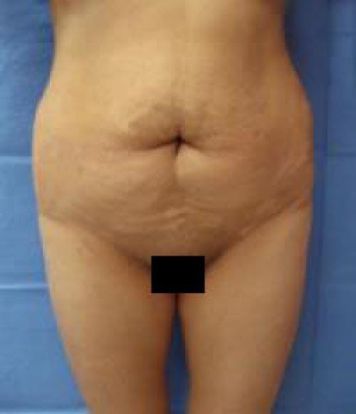 Tummy Tuck Gallery - Patient 58470200 - Image 1
