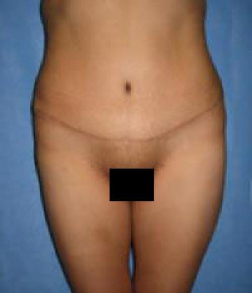 Tummy Tuck Gallery - Patient 58470200 - Image 2