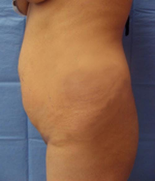 Tummy Tuck Gallery - Patient 58470200 - Image 3