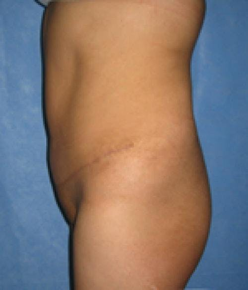 Tummy Tuck Gallery - Patient 58470200 - Image 4