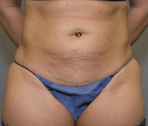 Tummy Tuck Gallery - Patient 58470202 - Image 1