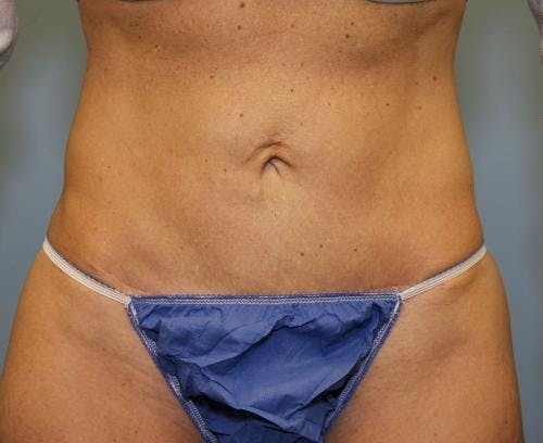 Tummy Tuck Gallery - Patient 58470202 - Image 2