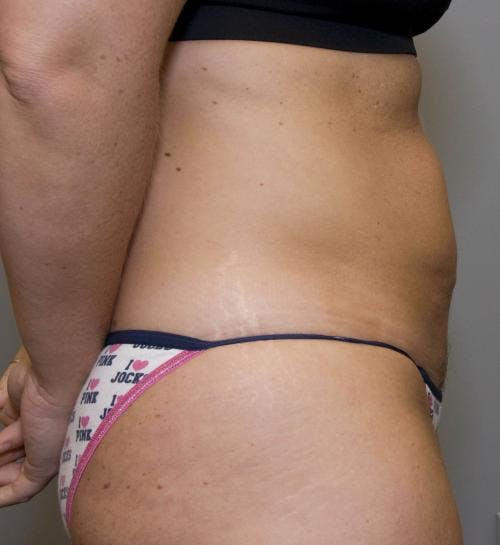 Tummy Tuck Gallery - Patient 58470202 - Image 3