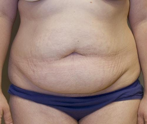 Tummy Tuck Gallery - Patient 58470204 - Image 1
