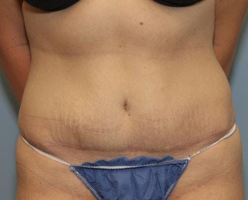 Tummy Tuck Gallery - Patient 58470204 - Image 2