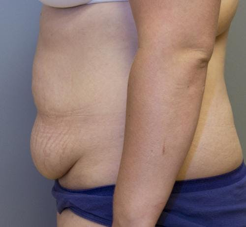 Tummy Tuck Gallery - Patient 58470204 - Image 3