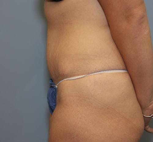 Tummy Tuck Gallery - Patient 58470204 - Image 4