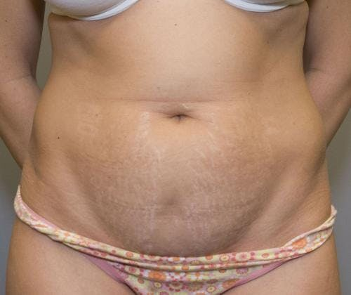 Tummy Tuck Gallery - Patient 58470206 - Image 1