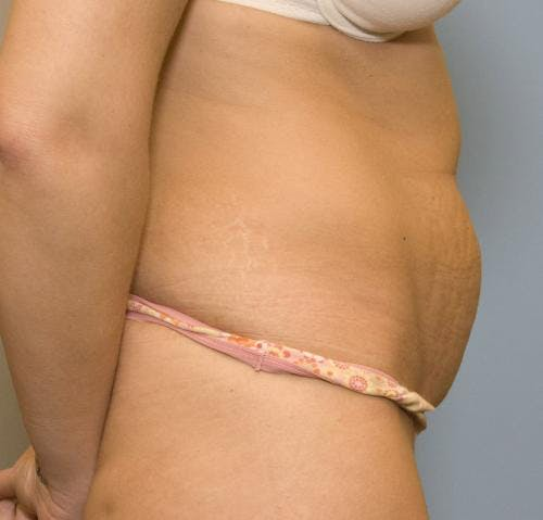 Tummy Tuck Gallery - Patient 58470206 - Image 3