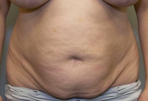Tummy Tuck Gallery - Patient 58470207 - Image 1