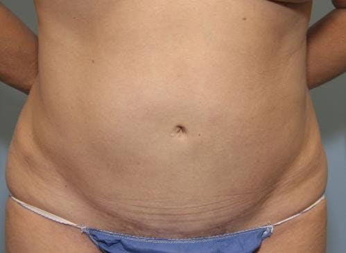 Tummy Tuck Gallery - Patient 58470207 - Image 2