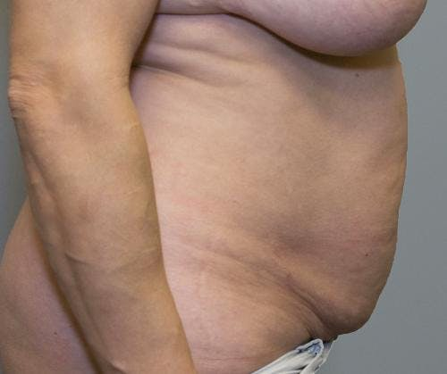 Tummy Tuck Gallery - Patient 58470207 - Image 3