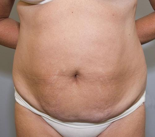 Tummy Tuck Gallery - Patient 58470208 - Image 1