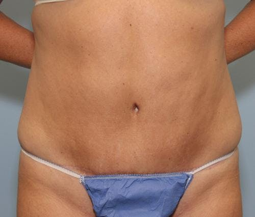 Tummy Tuck Gallery - Patient 58470208 - Image 2