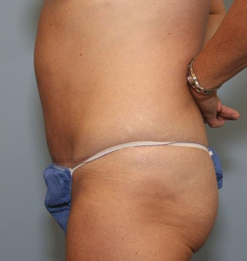 Tummy Tuck Gallery - Patient 58470208 - Image 4