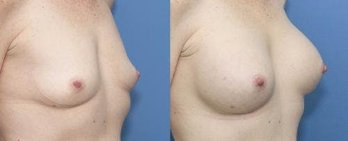 Breast Augmentation Gallery - Patient 58470344 - Image 2