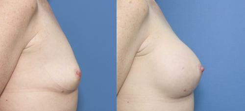 Breast Augmentation Gallery - Patient 58470344 - Image 3