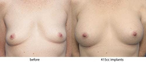 Breast Augmentation Gallery - Patient 58470344 - Image 1