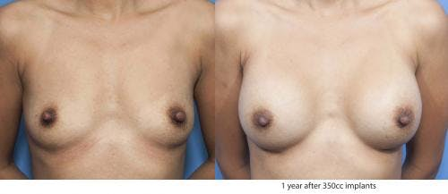 Breast Augmentation Gallery - Patient 58470347 - Image 1