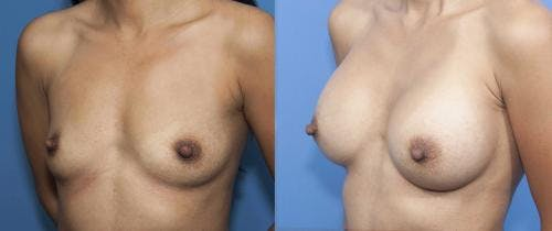 Breast Augmentation Gallery - Patient 58470347 - Image 2