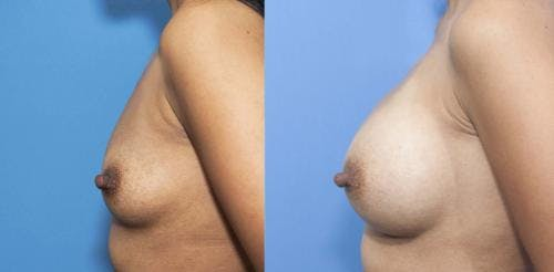 Breast Augmentation Gallery - Patient 58470347 - Image 3