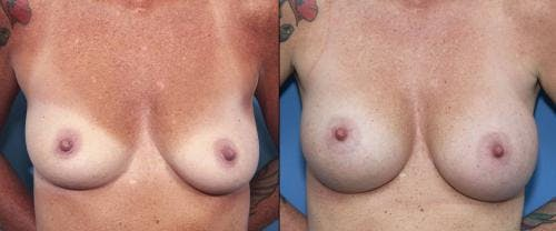 Breast Augmentation Gallery - Patient 58470348 - Image 1
