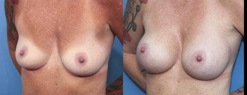 Breast Augmentation Gallery - Patient 58470348 - Image 2