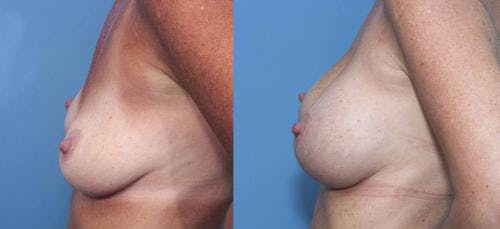 Breast Augmentation Gallery - Patient 58470348 - Image 3