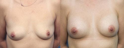 Breast Augmentation Gallery - Patient 58470350 - Image 1