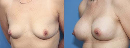 Breast Augmentation Gallery - Patient 58470350 - Image 3