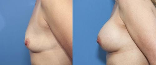 Breast Augmentation Gallery - Patient 58470350 - Image 4