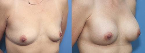 Breast Augmentation Gallery - Patient 58470350 - Image 5
