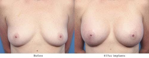 Breast Augmentation Gallery - Patient 58470352 - Image 1