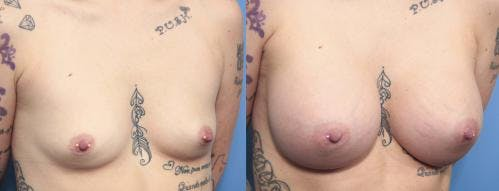 Breast Augmentation Gallery - Patient 58470352 - Image 2