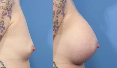 Breast Augmentation Gallery - Patient 58470352 - Image 3