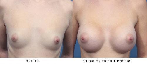 Breast Augmentation Gallery - Patient 58470353 - Image 1