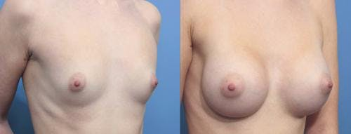 Breast Augmentation Gallery - Patient 58470353 - Image 2