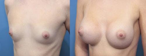 Breast Augmentation Gallery - Patient 58470353 - Image 3