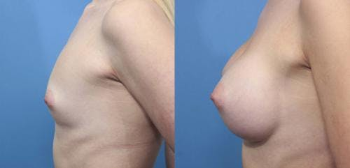 Breast Augmentation Gallery - Patient 58470353 - Image 4