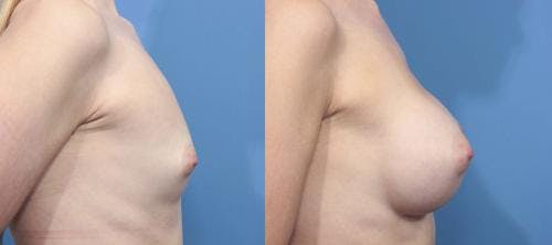 Breast Augmentation Gallery - Patient 58470353 - Image 5