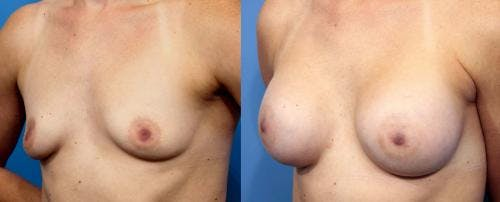 Breast Augmentation Gallery - Patient 58470354 - Image 1