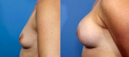 Breast Augmentation Gallery - Patient 58470354 - Image 2