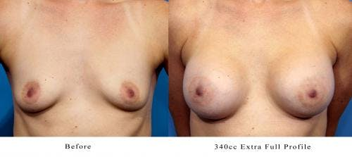 Breast Augmentation Gallery - Patient 58470354 - Image 3