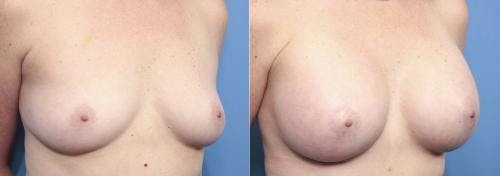 Breast Augmentation Gallery - Patient 58470355 - Image 1