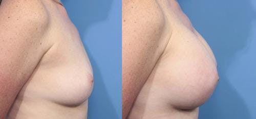 Breast Augmentation Gallery - Patient 58470355 - Image 3