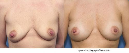 Breast Augmentation Gallery - Patient 58470358 - Image 1