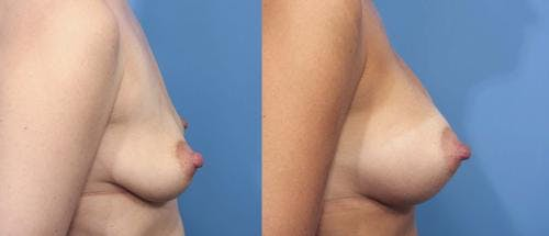 Breast Augmentation Gallery - Patient 58470358 - Image 2