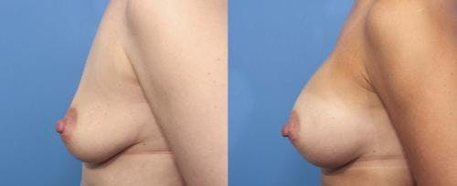 Breast Augmentation Gallery - Patient 58470358 - Image 3