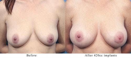 Breast Augmentation Gallery - Patient 58470359 - Image 1