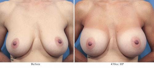 Breast Augmentation Gallery - Patient 58470360 - Image 1